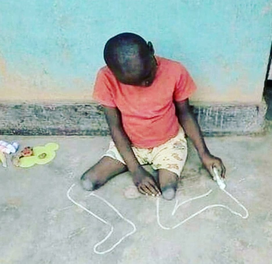 Assessing amputee depression. young-black-boy-with-both-legs-amputated-drawing-out-his-missing-legs-in-chalk