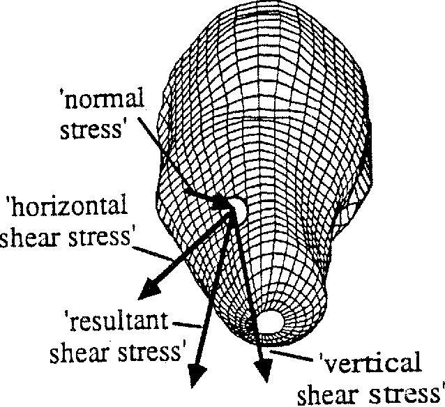 Names-of-the-type-of-stress-on-a-prosthesis-socket