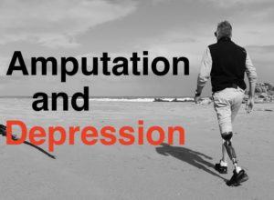 How to reduce amputee depression
